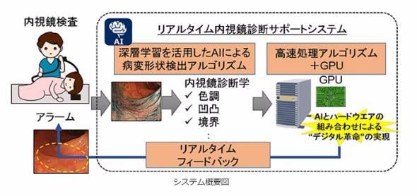 人工知能を用いた「大腸がん」発見システム