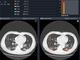 富士通、胸部CT画像から新型コロナ見抜くAI開発へ