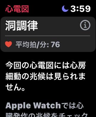 Apple Watchの心電図計測後
