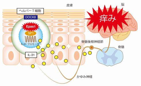 アトピー性皮膚炎 発見 メカニズム 治療薬