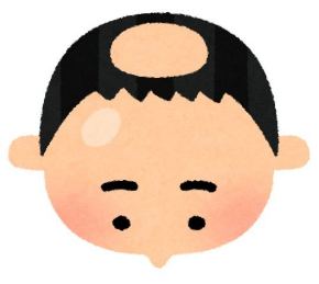 悲しみの肌色率高め いらすとやいろいろなハゲ頭のフリー素材で