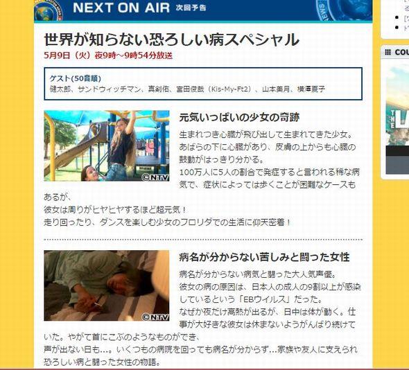 松来未祐 慢性活動性EBウイルス感染症 世界仰天ニュース