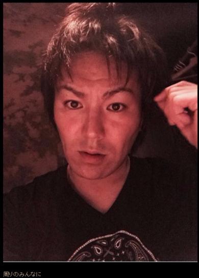 狩野英孝 ブログ 髪 アンチエイジング