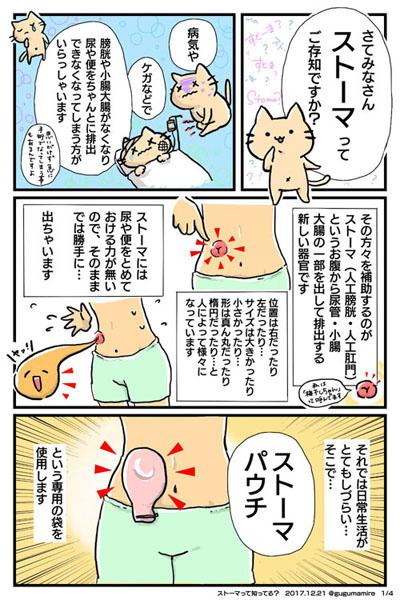 ストーマ(人工の肛門・膀胱)って知ってますか? 実情と理解を広めるため使用者自ら描いた漫画が話題に