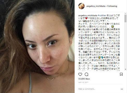 道端アンジェリカ 結婚 モデル 乾癬 皮膚疾患