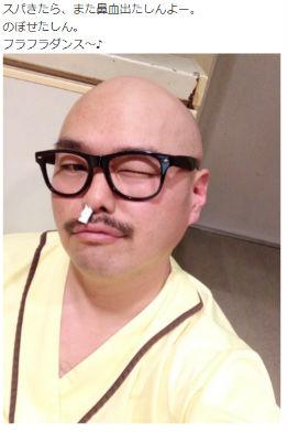 クロちゃん 芸人 2型糖尿病 森田豊医師 食生活 名医のTHE太鼓判! 鼻血 入院