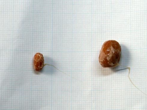 納豆の大きさの調査
