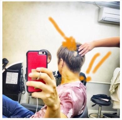 GACKT YOSHIKI 芸能人格付けチェック 円形脱毛症