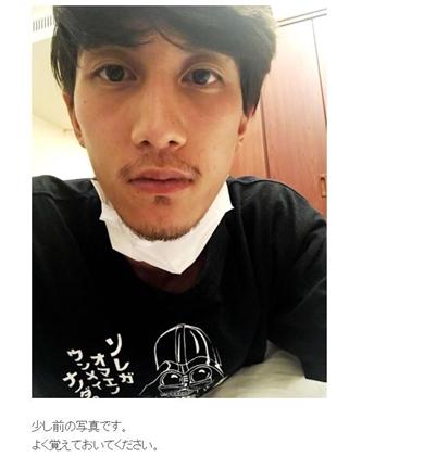 Nosuke misono 癌 ガン ボウズ 副作用