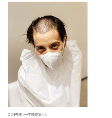 Nosuke misono 癌 ガン 坊主頭