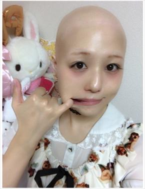 pippi 全身脱毛症 エレクトリックリボン アイドル 治療