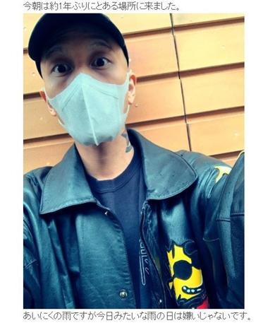 Nosuke タトゥー MRI CT レントゲン 入れ墨 刺青 火傷