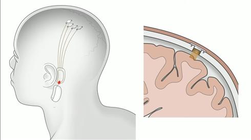 イーロン・マスクの「ニューラリンク」、脳埋め込みインタフェースを実用化へ 2020年に臨床試験
