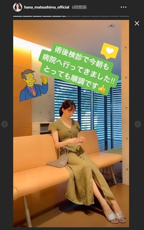 松島花 アゴ 骨折 手術 モデル