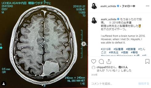 内田朝陽 病気 脳腫瘍 いつ 髄膜腫