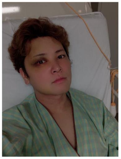 間瀬翔太 脳動静脈奇形 難病 入院 手術