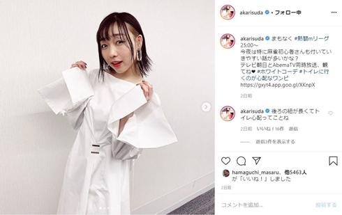 須田亜香里 SKE48 金属アレルギー スッキリ アクセサリー