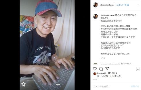 笠井信輔 悪性 リンパ腫 抗がん剤 頭髪 ウィッグ インスタ