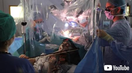 脳の手術中にバイオリンを弾く患者