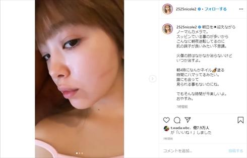 藤田ニコル 火傷 コテ インスタ 火傷痕 すっぴん