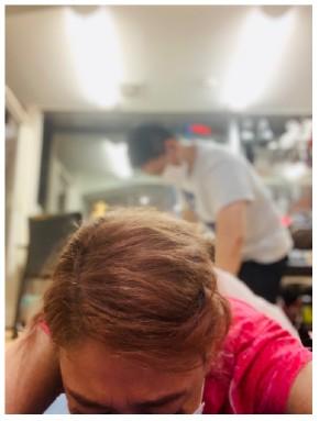LiLiCo 手術 骨折 ブログ リハビリ