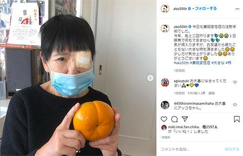 和田アキ子 黄斑変性症 眼帯