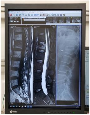 布川敏和 骨折 腰椎 圧迫骨折 肘 関節内骨折 ブログ