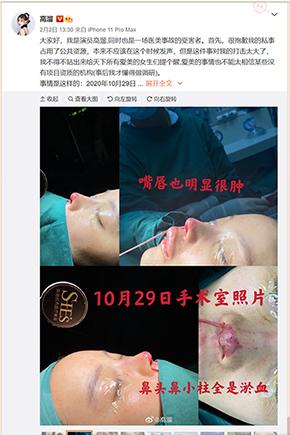 壊死 鼻 中国 女優