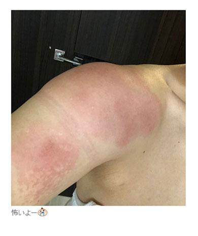 キンタロー。 ビタミンD 炎症 アレルギー 注射