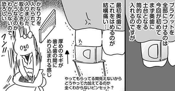 「歯の上で鈴鹿8耐が開催」「厚めのネギが歯の間にめりこむ」 顎変形症の治療過程を描いた実体験漫画が面白くて勉強にもなる