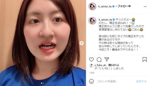 小林星蘭 子役 現在 歯列矯正 インビザライン