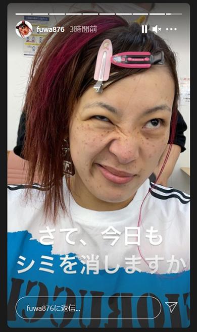 フワちゃん シミ レーザー治療