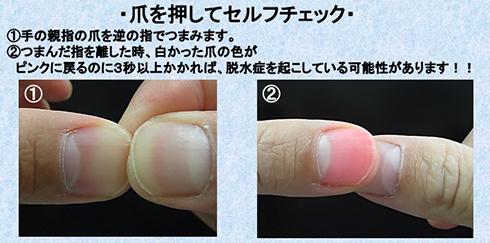 指をつまむだけの熱中症チェック 厚労省のセルフ確認が簡単すぎて活用したい