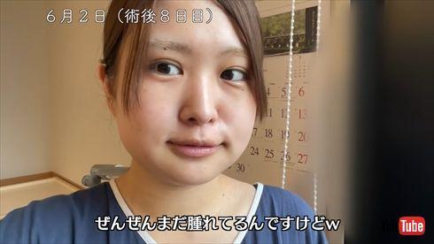 伊藤かりん 乃木坂46 顎変形症 下顎前突 手術 術後 矯正 YouTube