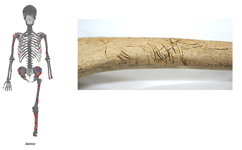 京大が人類最古のサメ被害記録を更新 約3000年前の人骨からサメに全身を食いつかれた痕跡を特定