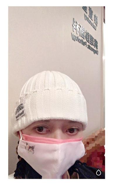 広田レオナ 肺がん 肺気胸