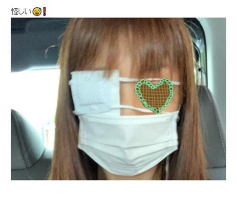 小倉優子 ものもらい 手術
