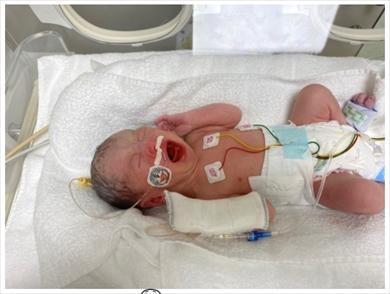 光上せあら 第2子 出産 妊婦 新型コロナ SDN48 ブログ