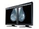 ナナオ、医療用モノクロ液晶「RadiForce」のラインアップを拡充