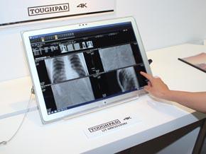 TOUGHPAD 4Kを医療の現場で使用する事例