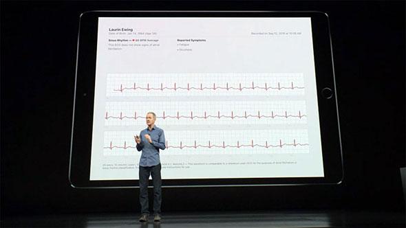 "3a596ffb51 Apple Watch Series 4」を試して分かった""iPhone以上の大進化"" (4/4 ..."