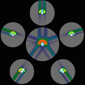 回転ガントリーを使用した重粒子線治療の照射例
