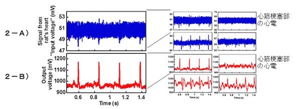 ラットの心電の信号増幅