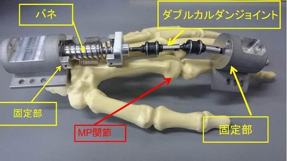 開発したMP関節部の創外固定器