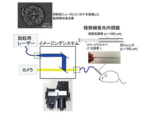 U-FEISの概略図と先端部形状