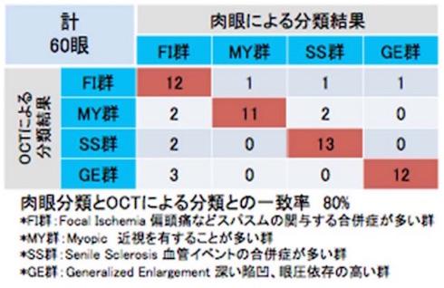 肉眼分類とOCTによる分類の比較
